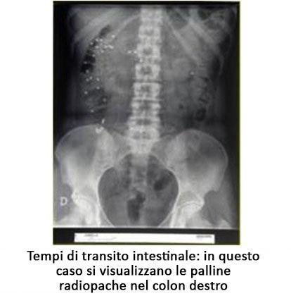 Tempi di transito intestinale: in questo caso si visualizzano le palline radiopache nel colon destro