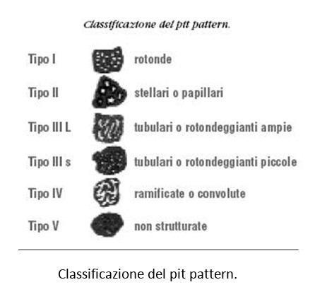Classificazione del pit pattern