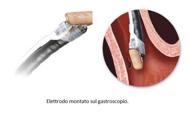 Elettrodo montato sul gastroscopio