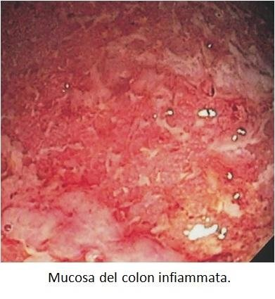 Mucosa del colon infiammata