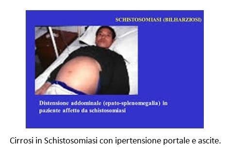 Cirrosi in Schistosomiasi con ipertensione portale e ascite
