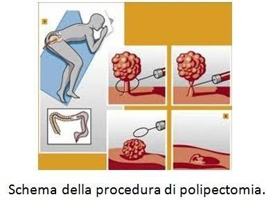 Schema della procedura di polipectomia