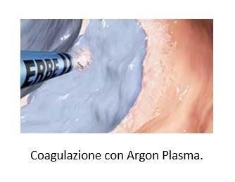Coagulazione con Argon Plasma