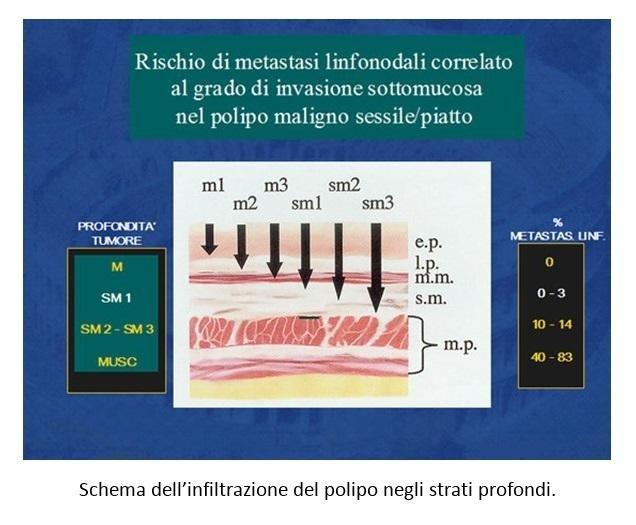 Schema dell'infiltrazione del polipo negli strati profondi