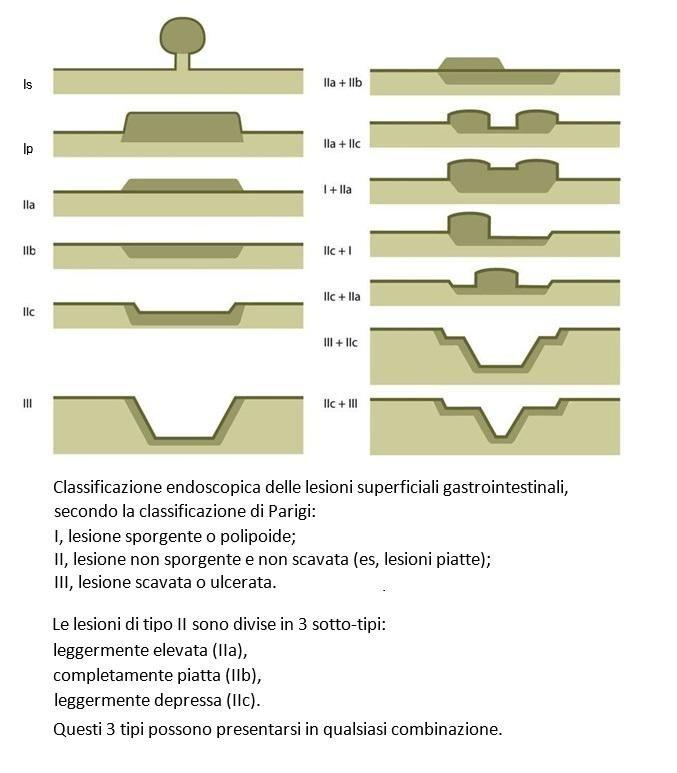 Classificazione endoscopica delle lesioni superficiali gastrointestinali, secondo la classificazione di Parigi