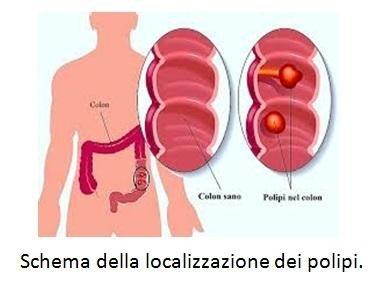 Schema della localizzazione dei polipi