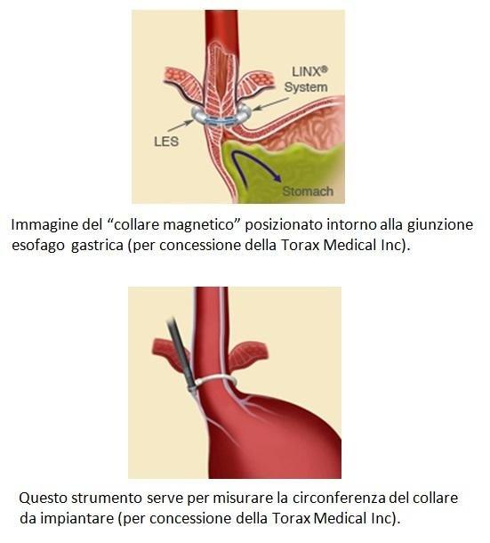 Collare magnetico da posizionare alla giunzione esofago gastrica