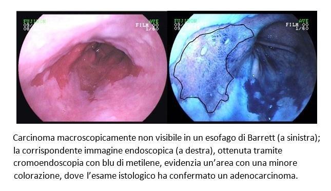 Carcinoma di un Esofago di Barrett