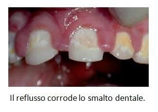 Il reflusso corrode lo smalto dentale