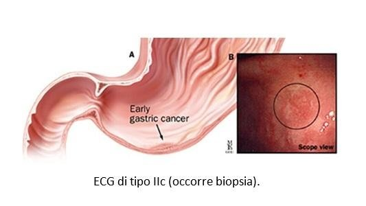 ECG (Early Gastric Cancer)