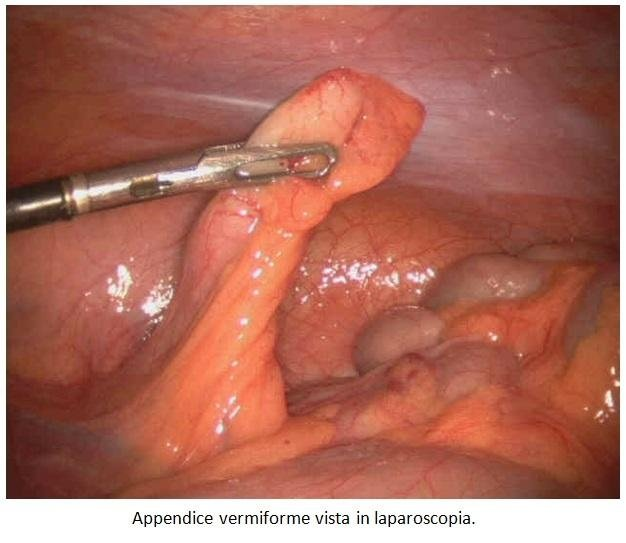 Appendice vermiforme vista in laparoscopia