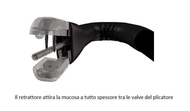 Il retrattore attira la mucosa a tutto spessore tra le valve del plicatore