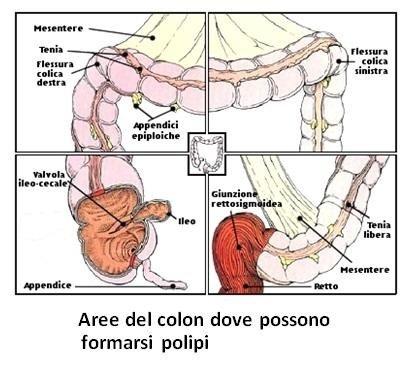 Aree del colon dove possono formarsi polipi