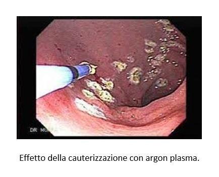Effetto della cauterizzazione con argon plasma