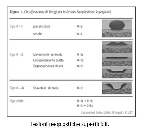 Lesioni neoplastiche superficiali