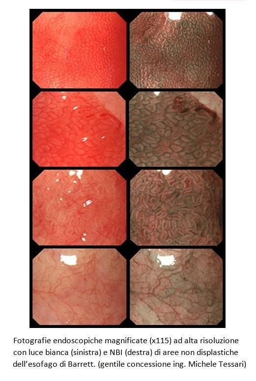 Fotografie endoscopiche magnificate (x115)