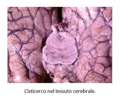 Cisticerco nel tessuto cerebrale