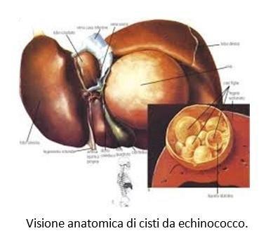Visione anatomica di cisti da echinococco