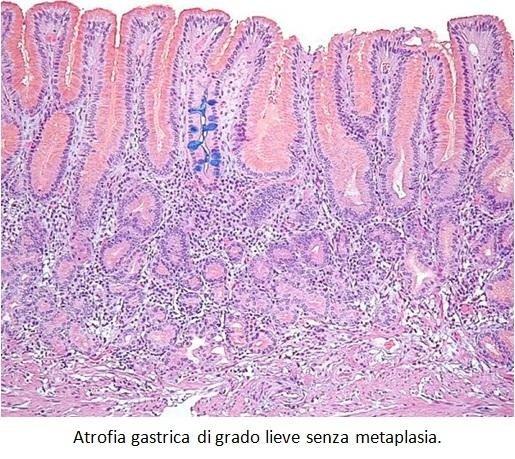 Atrofia gastrica di grado lieve senza metaplasia