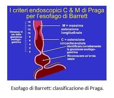 Esofago di Barrett: classificazione di Praga