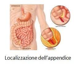 Localizzazione del'appendice
