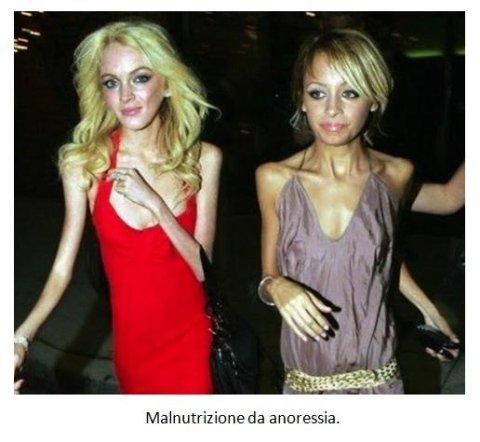 Malnutrizione da anoressia