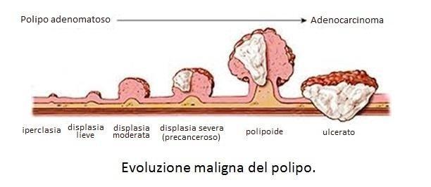 Evoluzione maligna del polipo