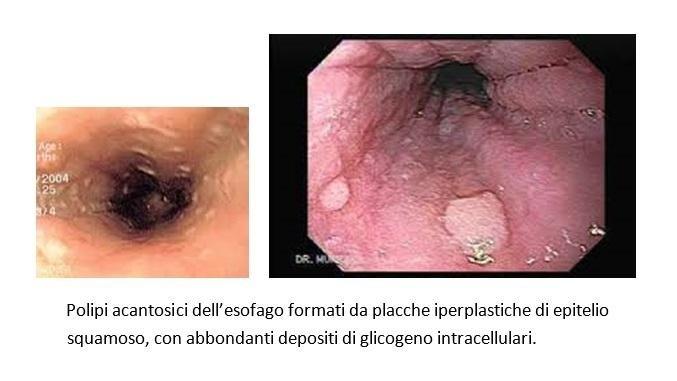 Polipi acantosici dell'esofago
