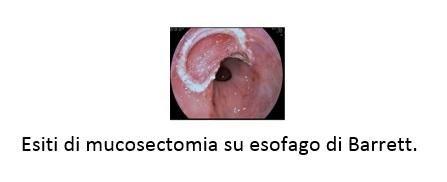 Esiti di mucosectomia su esofago di Barrett