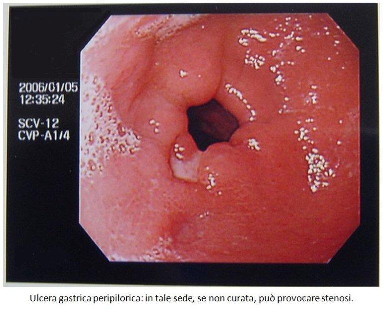 Ulcera gastrica peripilorica: in tale sede, se non curata, può provocare stenosi