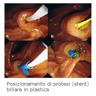 Protesi endoscopiche