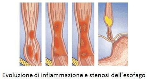 Evoluzione di infiammazione e stenosi dell'esofago