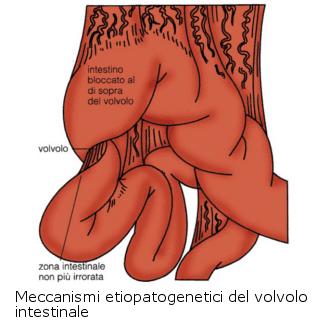 Occlusione intestinale - Sub occlusione - Ostruzione