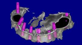 realizzazione protesi fisse, inserimento impianti dentari, studio implantologia in 3d