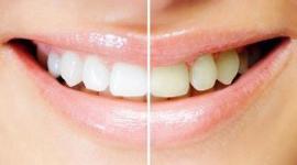 trattamenti dentali estetici, pulizia dentale, estetica del sorriso