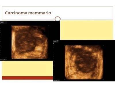 Carcinoma mammario Prof. Kambiz Tavassoli