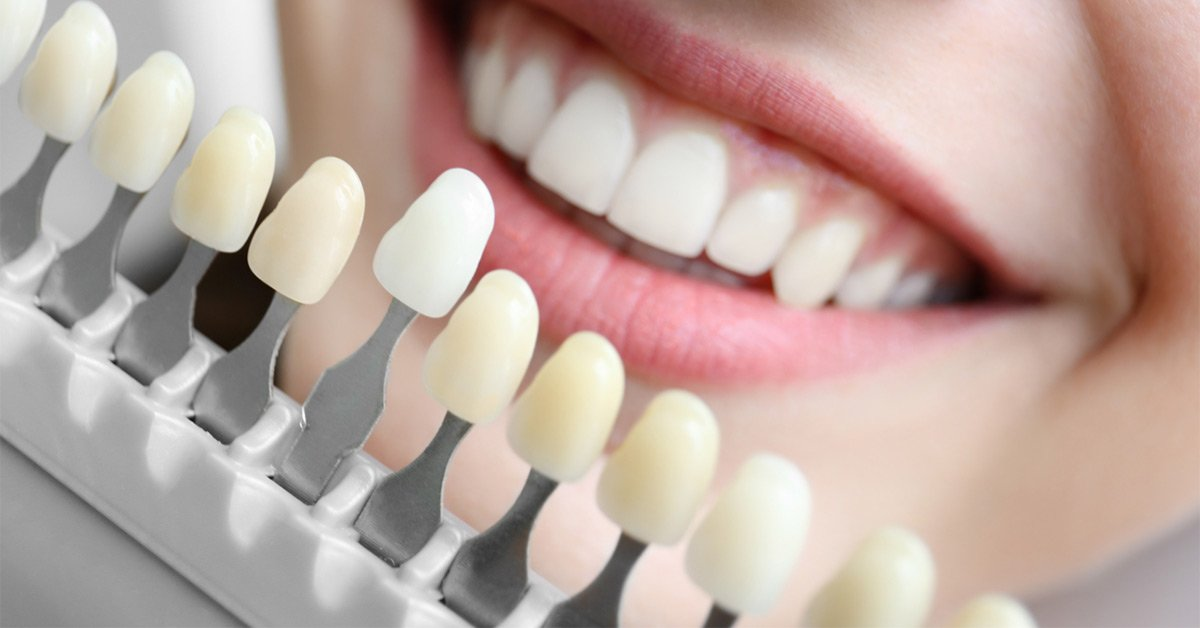 50 Shades of White: How to Choose the Right Shade for Teeth Whitening