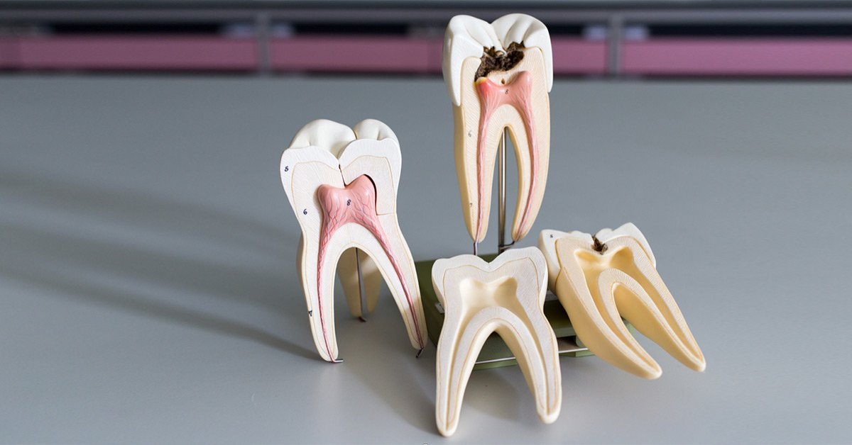 The Do S And Don Ts Of Root Canal Aftercare