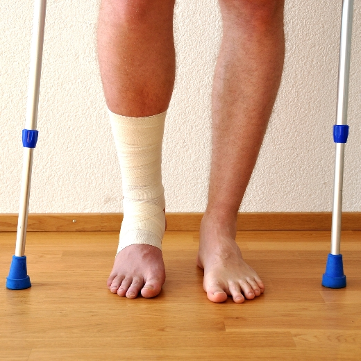 A man uses crutch because of his bone fracture