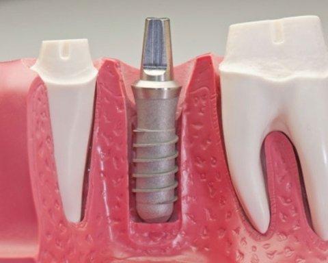 implantologia computer assistita