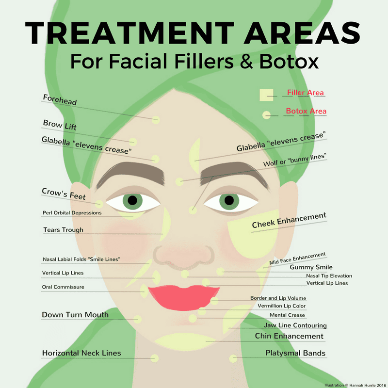 start here with our diagram detailing the area(s) of the face that can  benefit from treatment: