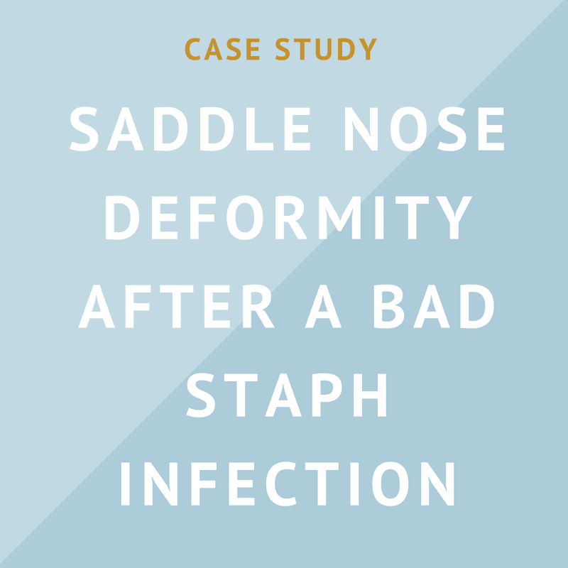 Case Study: Saddle Nose Deformity after a Bad Staph Infection