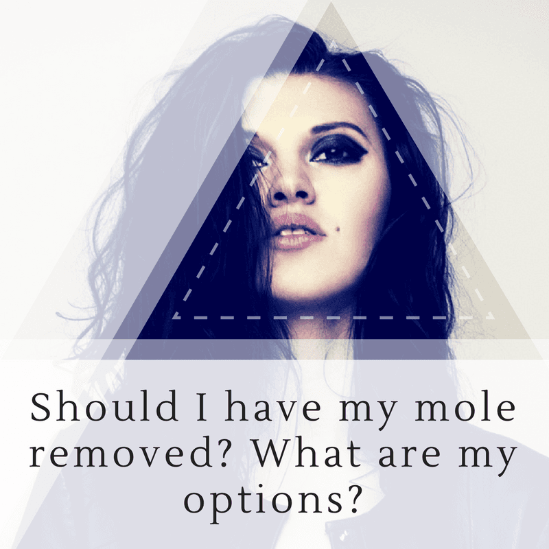 Should I have this mole removed? What are my options?