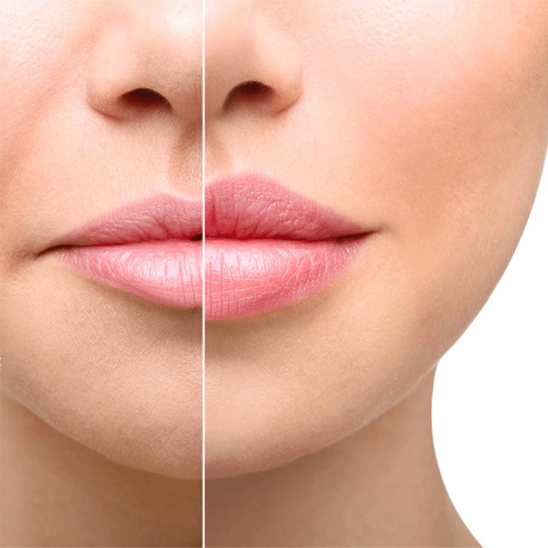 Visage Facial Plastic Surgery | Milwaukee Rhinoplasty