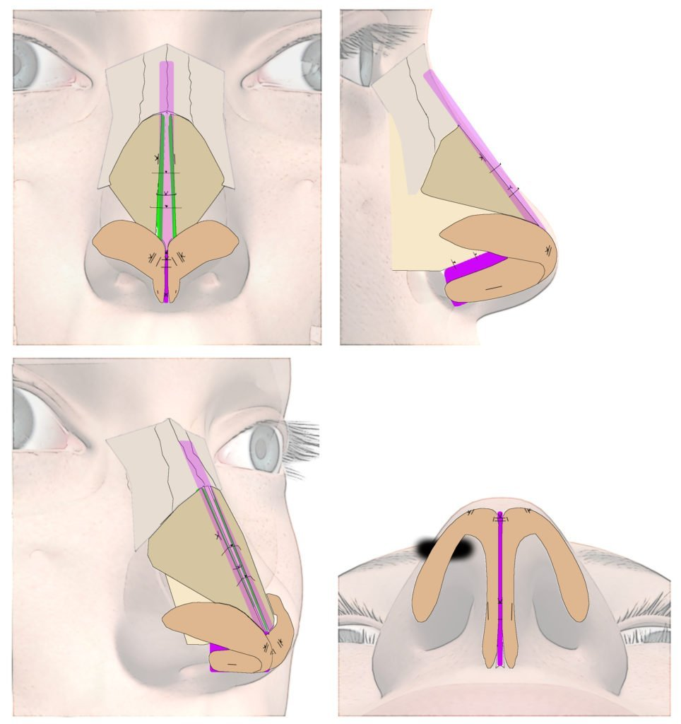 Before & after saddle nose photos - Nose Job Facial Surgery Milwaukee, WI Dr. Anand Patel MD