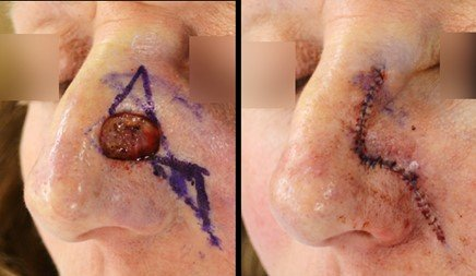 first skin cancer defect closed
