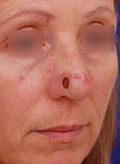 second skin cancer defect