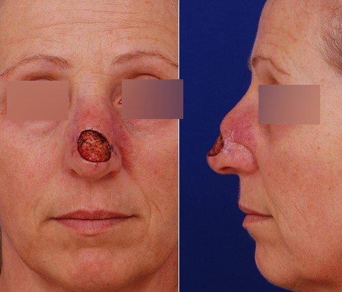 third skin cancer defect