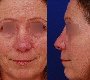 skin cancer final closure