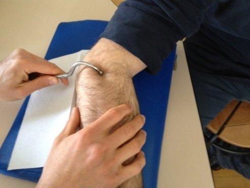 Rossi Stefano, fisioterapista, cura il recupero motorio degli arti superiori e inferiori.